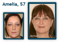 Amelia Before and After QLift Procedure