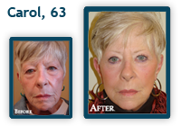 Carol Before and After QLift procedure
