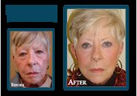 Carol Before and After QLift procedure