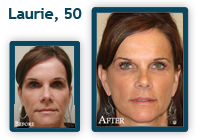 Laurie Before and After QLift procedure